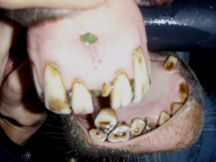 Horse Teeth Extraction 2